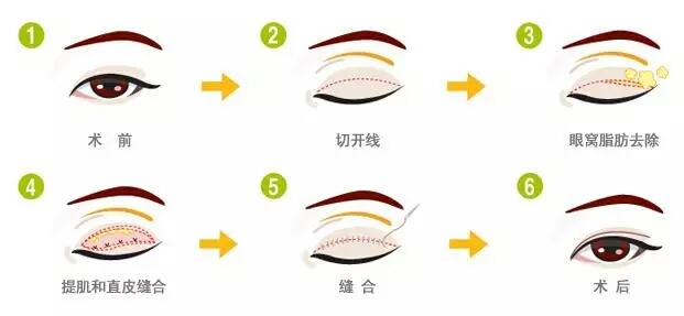"""【医美科普】你知道吗,双眼皮术后""""睁大眼""""恢复快!"""